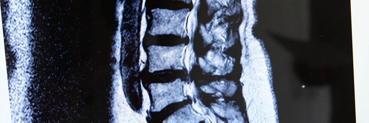 Spiralkanalstenose-OP (bei Wirbelkanalverengung der Lendenwirbelsäule) wie z.B. mittels Dekompression und Spacer (beides minimalinvasiv)