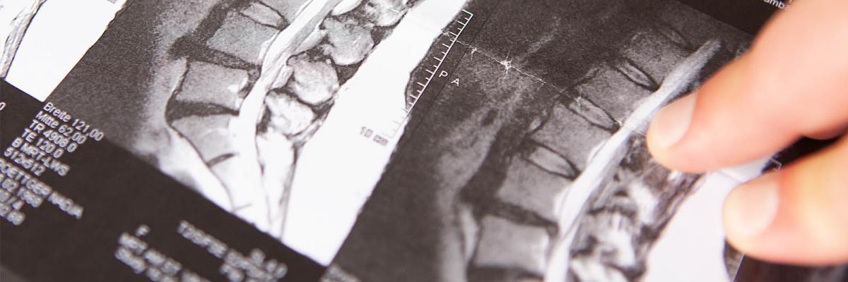 Endoskopische Lendenwirbelsäulen-Operation (minimalinvasiv)