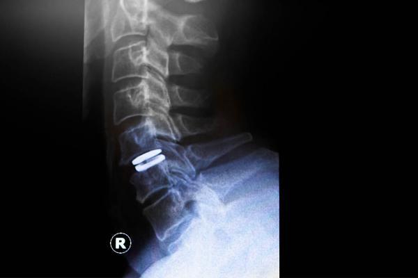 Bandscheibenprothese / Stabilisierung Halswirbelsäule und Lendenwirbelsäule