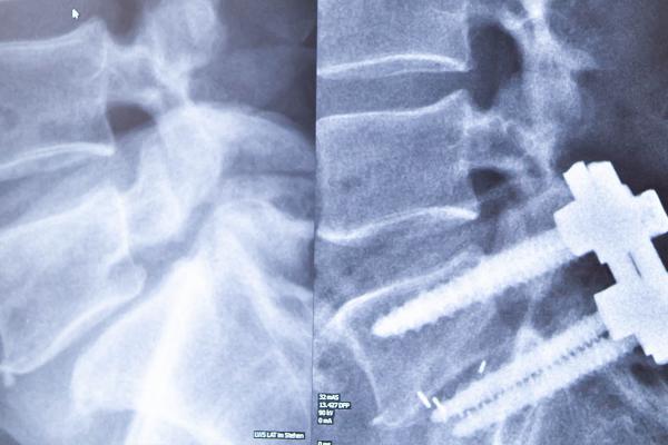 Mikrochirurgische Wirbelsäulenstabilisierung (TLIF) bei Stenosen/Instabilitäten (z.B. Wirbelgleiten)