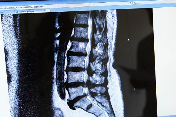 Mikrochirurgische Bandscheiben-Operation (minimalinvasiv)
